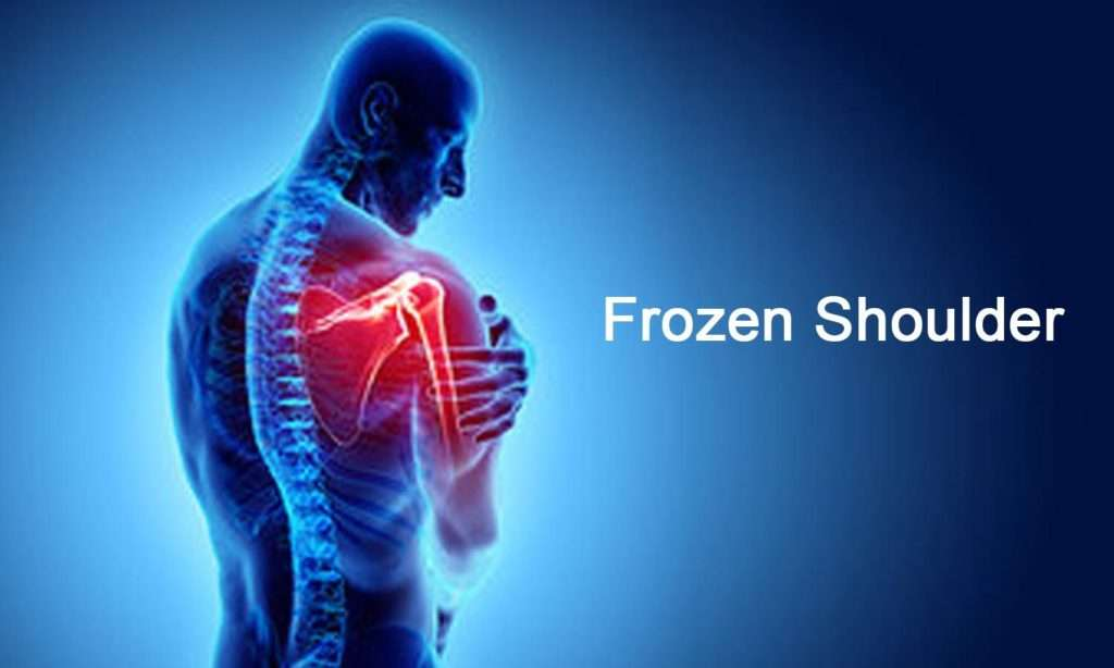 homeopathy treatment of Frozen Shoulder