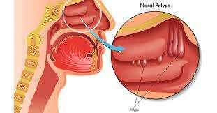 homeopathy treatment of nasal polyps