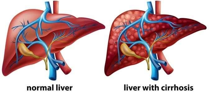 Homeopathy medicines for liver cirrhosis