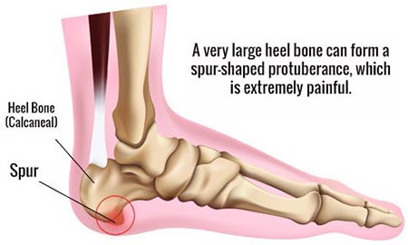 treatment of Calcaneal Spur.
