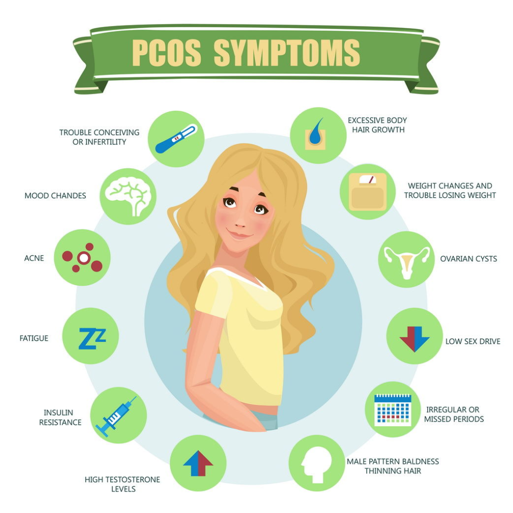 How To Cure PCOS Permanently?