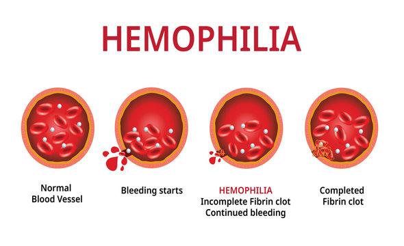 Treatment of Haemophilia