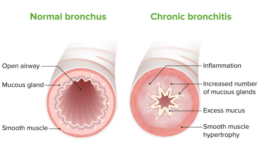 Treatment of Chronic Bronchitis with custom-made Homeopathy medicines for bronchitis can help you get cured. The treatment protocol has been developed after exhaustive in-house research. Our clinics consult for more than 8000 patients with Chronic Bronchitis globally, every year. You too can be benefitted from our expertise in the treatment of Chronic Bronchitis.  Why Welling Homeopathy Medicines for Chronic Bronchitis Treatment?  Our custom-made Homeopathy medicines for Chronic Bronchitis has helped 12,230 patients since the start of the clinic, TheHomeopathy treatmentfor Chronic Bronchitis has cured the most widespread painful Chronic Bronchitis, The treatment is non-steroidal, with no creams and no locations. Just natural Homeopathy medicines custom-made for you for faster recovery, Usually, we see a cure in 12-18 months, rarely requiring 24 months. The fastest and the safest way to get cured of Chronic Bronchitis symptoms permanently.  Call +91 8080 850 950 to book an appointment or to consult and order online.Consult our specialists today for a detailed evaluation and to start your customised Homeopathy medicines for Chronic Bronchitis.  What is Chronic Bronchitis?  Chronic bronchitis is bronchitis that lasts longer than 3 months. Chronic bronchitis is a long-term, respiratory illness. Those with chronic bronchitis have a daily mucus-producing cough that persists for at least 3 months a year, at least 2 years in a row.  Chronic bronchitis is a persistent, serious lung disease that requires ongoing medical care and can lead to gradual deterioration of the lungs. Many people with chronic bronchitis also develop another respiratory disease called emphysema.  Chronic bronchitis involves the restriction of airflow in the air passages that worsens over time. This causes increasing difficulty in breathing and more sputum (mucus) production in the lungs.  Chronic bronchitis is a form of chronic obstructive pulmonary disease (COPD).  Causes ofChronic Bronchitis  Smoking