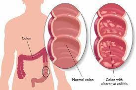 ulcerative colitis how to diagnose
