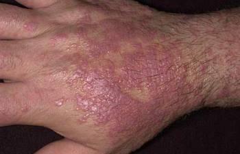 Is Lichen Sclerosus Linked To Lichen Planus?