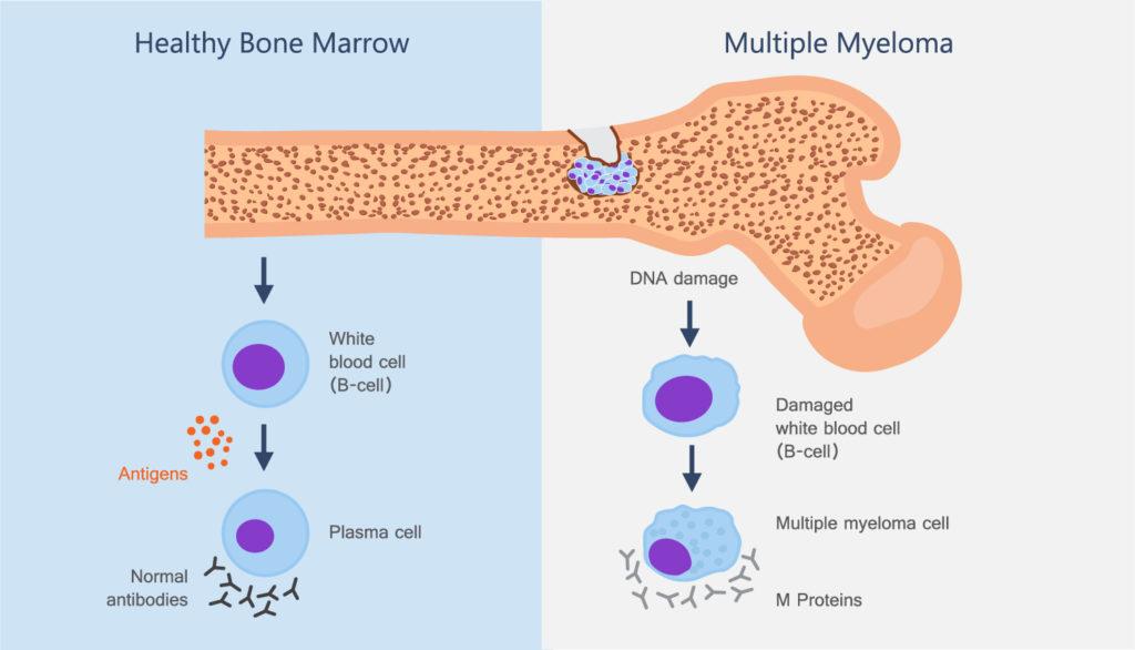 treatment of Multiple Myeloma